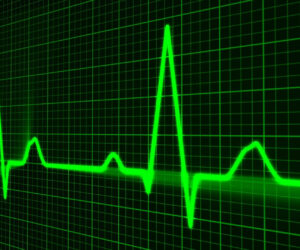 El Apple Heart Study identifica ritmo cardíaco irregular en 2.000 pacientes
